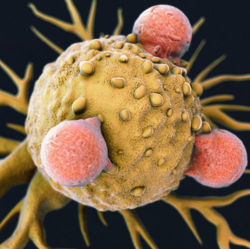 Answers to Uterine Cancer Prognosis Questions