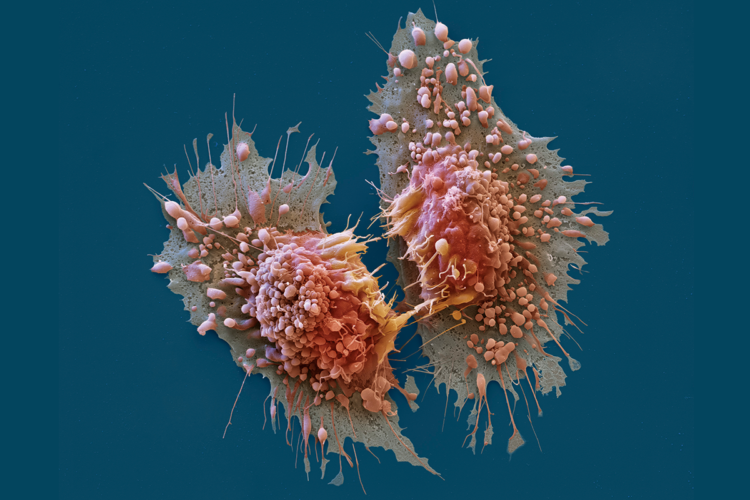 Chronic Leukemia Surgery? - Think India