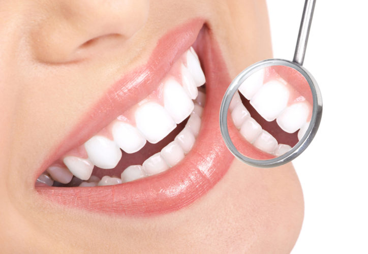 Dental Implants Can be an Affordable And Permanent Way to Replace a Missing Tooth