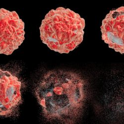 Find Out How Cancer Metastasis Imaging Works