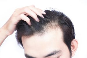 The Fear of Losing Your Hair
