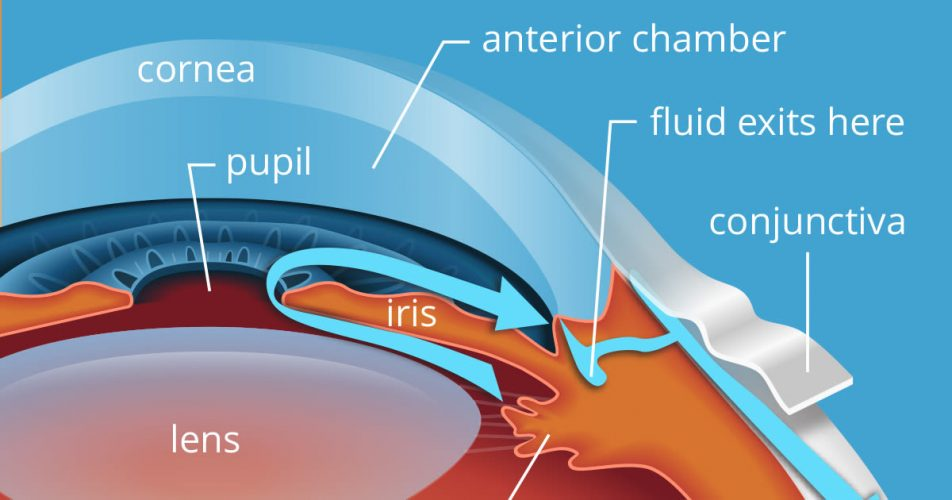 What is Glaucoma and its Causes?