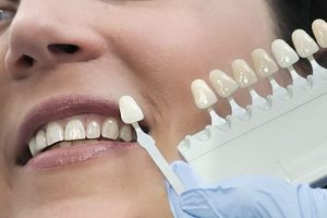 Dental Restoration: When and How to get a restorative surgery done